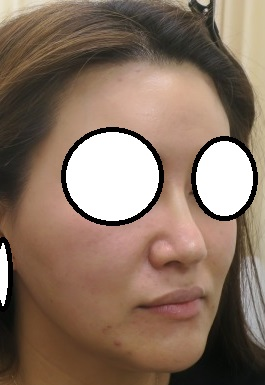 Gメッシュによる鼻筋形成+口唇ヒアルロン酸+コグ付き美容針リフト。直後の変化。