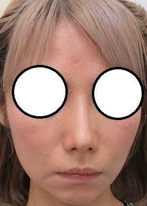 クレオパトラノーズ(ミスコ)による鼻尖形成。直後の状態。