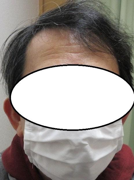 豊洲で薄毛治療(AGA治療)。3年7か月目の経過。