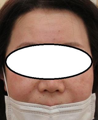 額のしわをボトックスと脂肪幹細胞上清液で薄くしていきましょう。6か月目の経過。