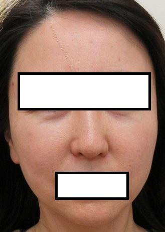 目の下と額の大きいほくろを切除しました。6か月目の経過。