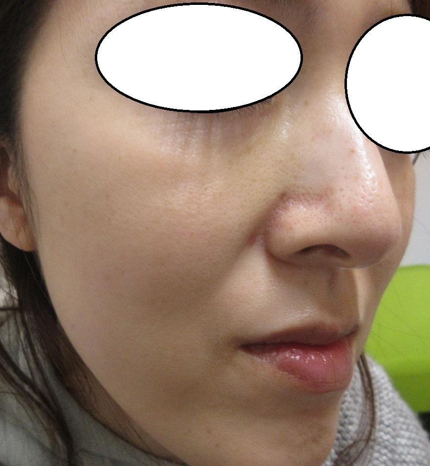 顔のシミ、イボ、ほくろの総合治療。6カ月目の経過。
