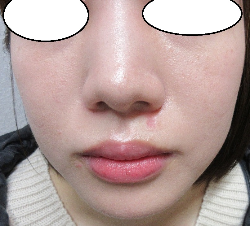 鼻の下のホクロの切除。1か月目の経過。