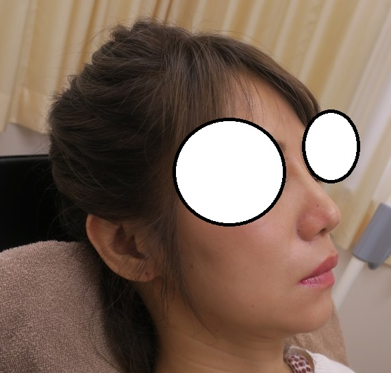 Gメッシュ2本で鼻筋を通してみました。直後の状態を参考にしてくださいね。