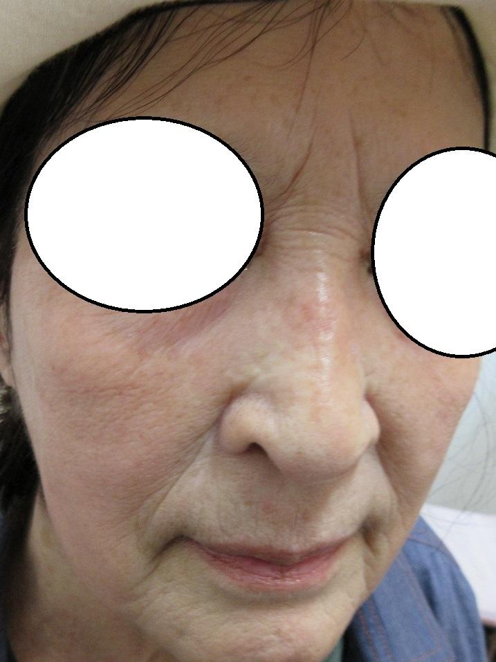 鼻筋のシミの経過。1.5か月目の経過。