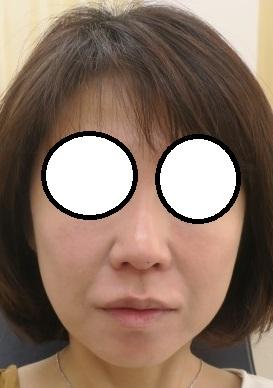 顔面のプレミアム治療。直後の状態。Gコグプレスリフト+ヒアルロン酸+肌再生FGF注入の組み合わせ。