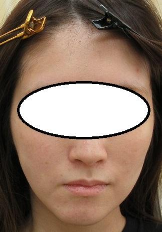 頬のコケにヒアルロン酸注入 直後の状態