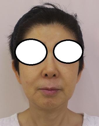 60代後半女性。複合治療(ウルトラセルQプラス3回+ヒアルロン酸+肌再生FGF注入)7か月目の経過。
