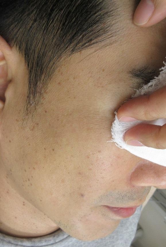 顔のイボのレーザー治療。3年6カ月目の経過。