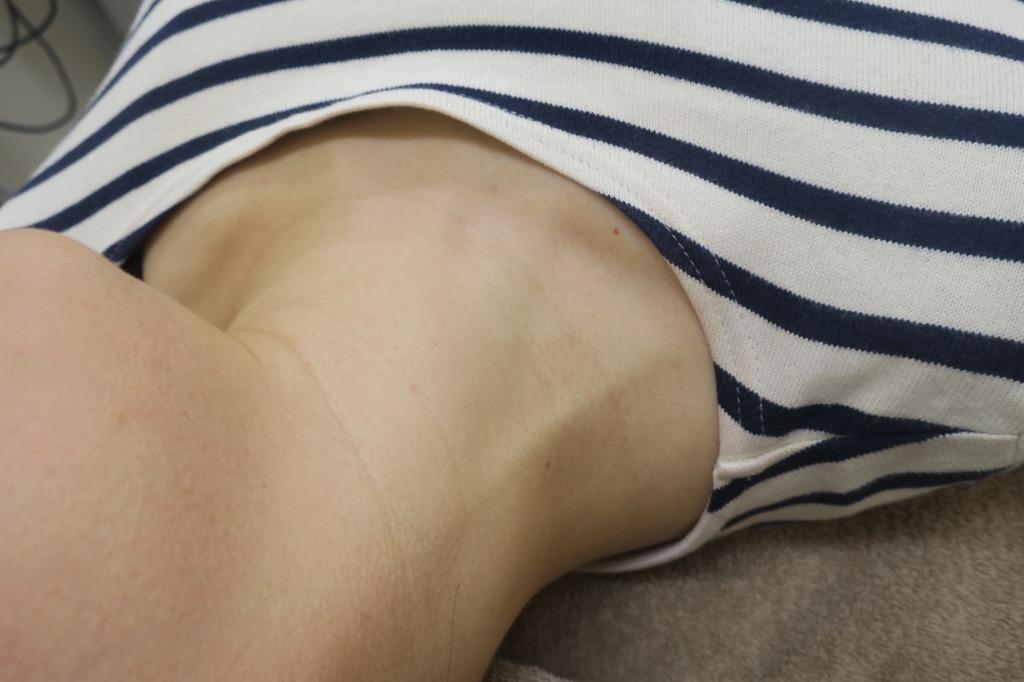 首のイボイボをレーザー治療でスベスベになりました。