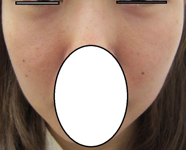 目の下のクマの治療。6か月目の経過。傷がゼロなのにここまできれいになりました。脂肪幹細胞上清液、ヒアルロン酸、眼窩脂肪注入など併用。