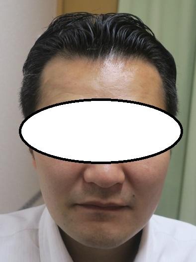 30代男性。薄毛(AGA)治療で1年半でここまで改善。いい感じですね。
