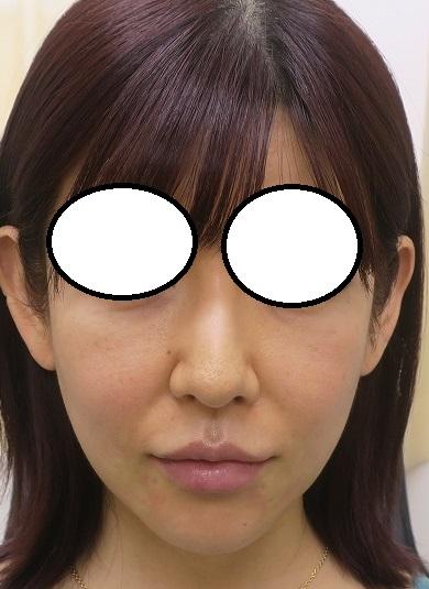 フェイスラインへの美容針リフト2年2か月目の経過。目の下にも脂肪幹細胞注入療法も追加。