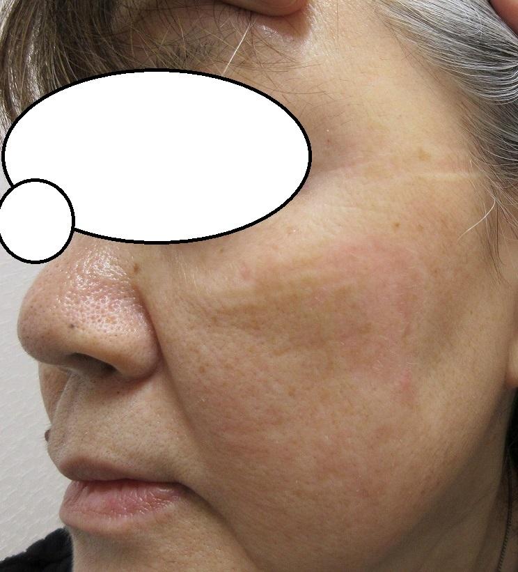 左頬の巨大なシミ。1か月目の経過。赤みはまだありますがかなりいい感じになりました。