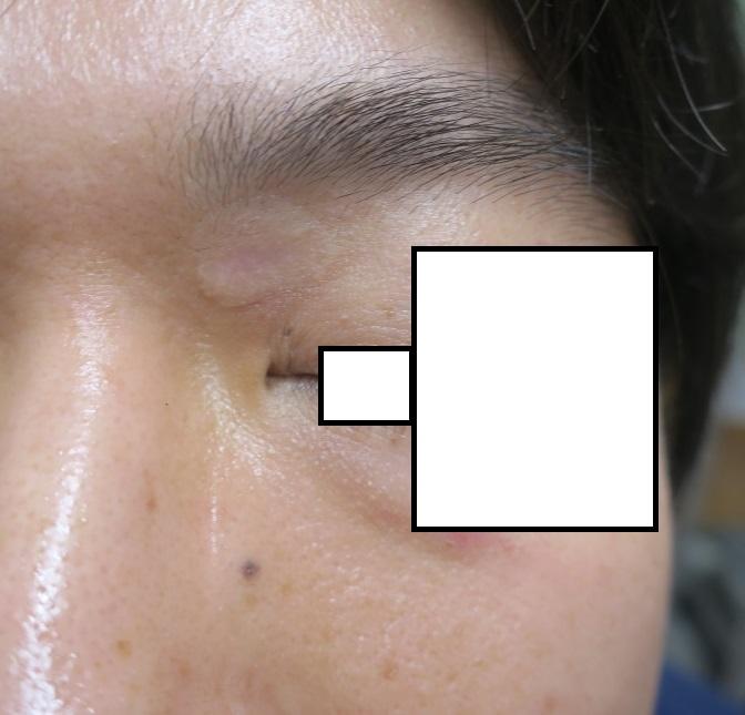 眉頭の大きなホクロを切除しました。4か月目。かなりきれいになりましたよ。