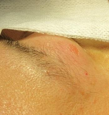右上眼瞼と左頬の大きいイボのレーザー治療。直後の状態。