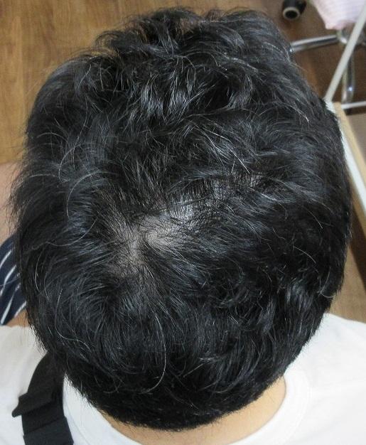 薄毛(AGA)治療。2年3か月目の経過。2個あるつむじがわからなくなりましたね。