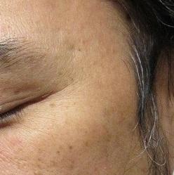 メンズの顔イボレーザー取り放題治療。1カ月目の経過。