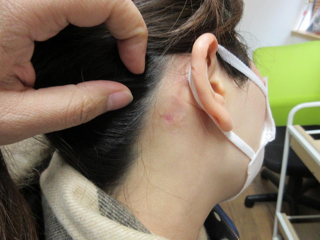 耳の裏の大きいほくろを切除しました。2か月目の経過。
