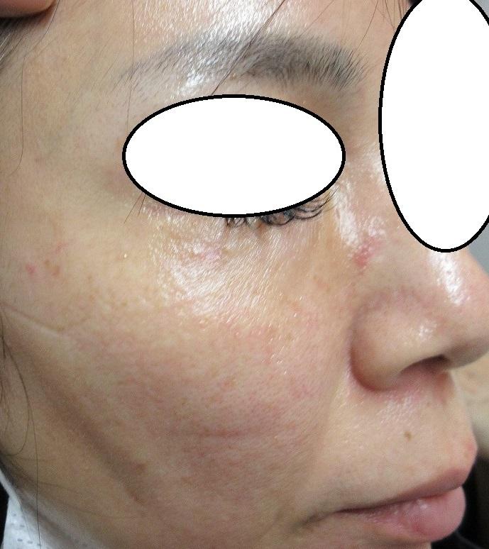 下眼瞼と上口唇~鼻下の目立つほくろを切除。3か月目の経過。