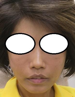 糸リフトの顔面スタンダード治療。コグリフト12本+美容針リフト60本。直後の状態。