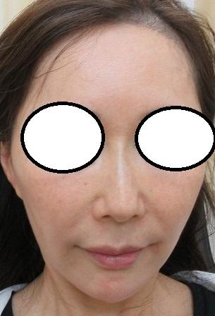 糸による鼻筋形成。2か月目の経過。オメガVL。自然でかっこの良い鼻になりました。