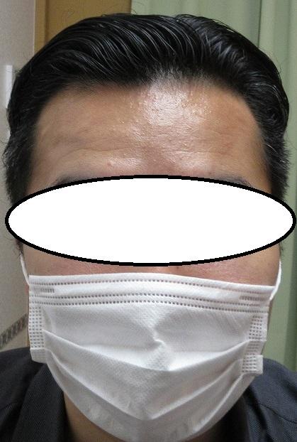 豊洲で薄毛(AGA)治療。2年7か月目の経過。内服外用だけでここまで改善