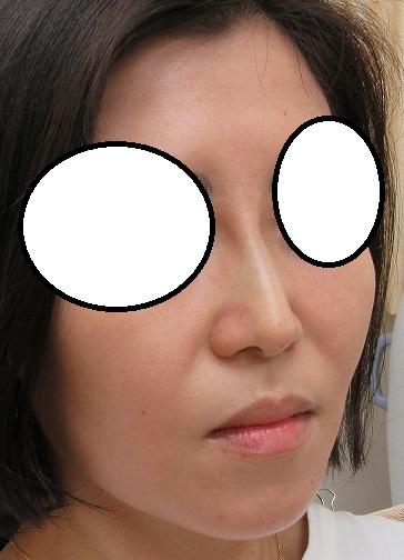 糸による鼻筋形成、オメガVL、4本挿入。直後の状態。