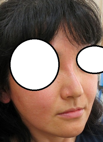 糸による鼻筋形成。Gメッシュ3本挿入。直後の状態。腫れないときは全く腫れません。
