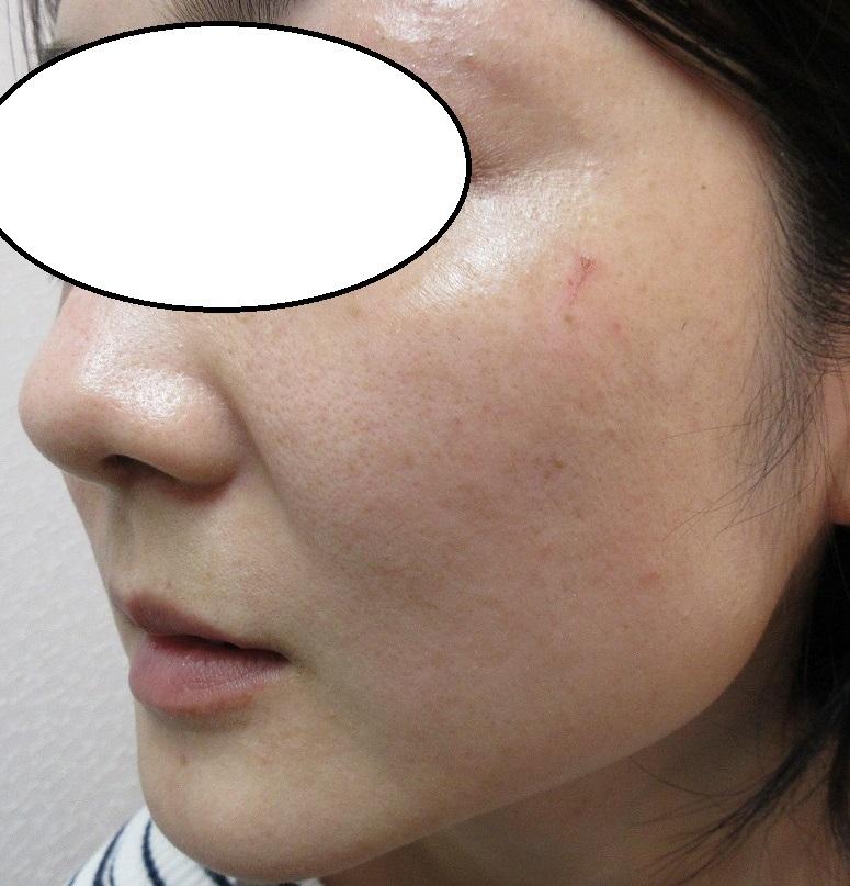 頬のシミの経過。4週目。まずまずの経過です。