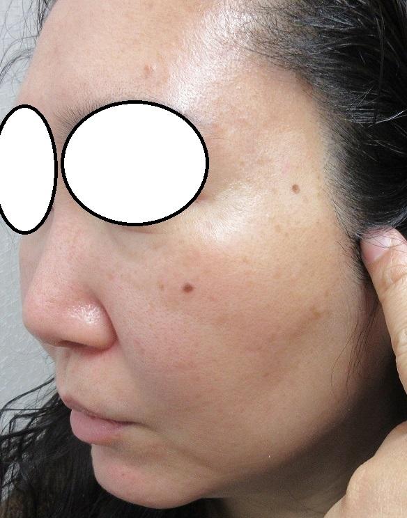 顔イボレーザー取り放題治療後。3カ月目の経過。