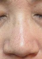 鼻筋の大きなホクロ切除。8ミリ大。5年目の経過。