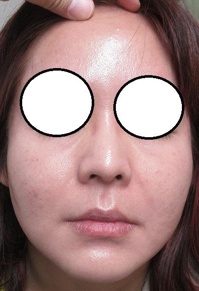 ゼオスキンによるニキビ・ニキビ瘢痕の治療。2か月目の経過。
