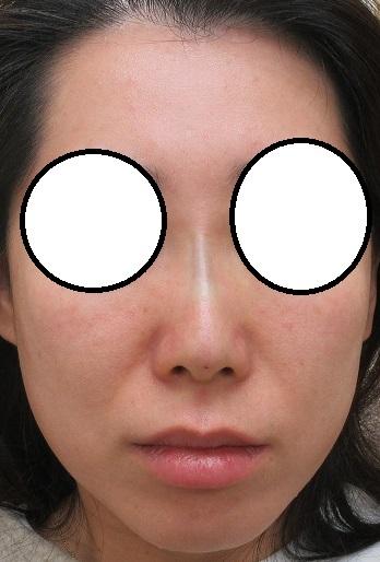 糸による鼻筋形成(オメガVL 4本)。直後の状態。