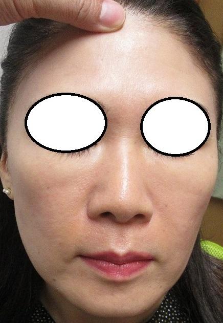 美肌の総合治療。仕上げにゼオスキンのセラピューティックプログラムも受けてくださいました。