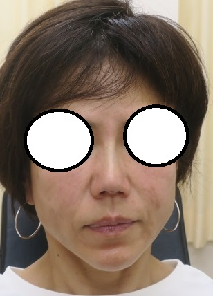 Gメッシュ4本による鼻筋形成。直後の状態。鼻筋がシュッとしました。