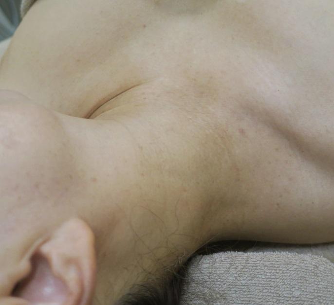 首のイボイボのレーザー治療は毎日やっています。2回でここまで改善しました。