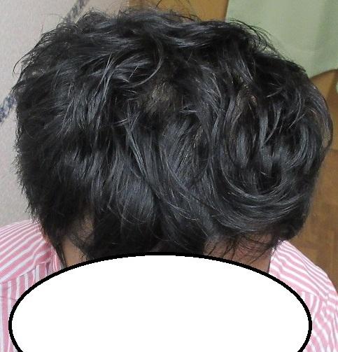 豊洲で薄毛(AGA)治療。4年目の経過。いい感じをキープしています。