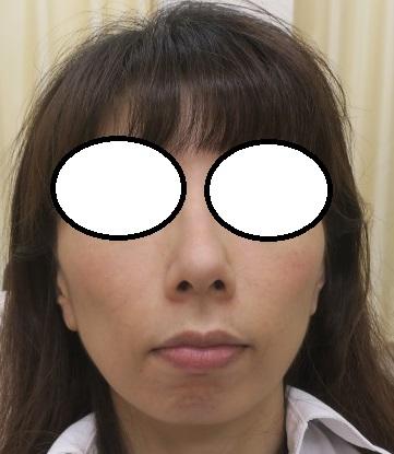 スジ状のほうれい線をヒアルロン酸でかなり目立たなくしました。7か月目の経過。今回はさらに肌再生FGF注入療法(日にち限定キャンペン中)を併用してみました。直後の状態。腫れはゼロです。