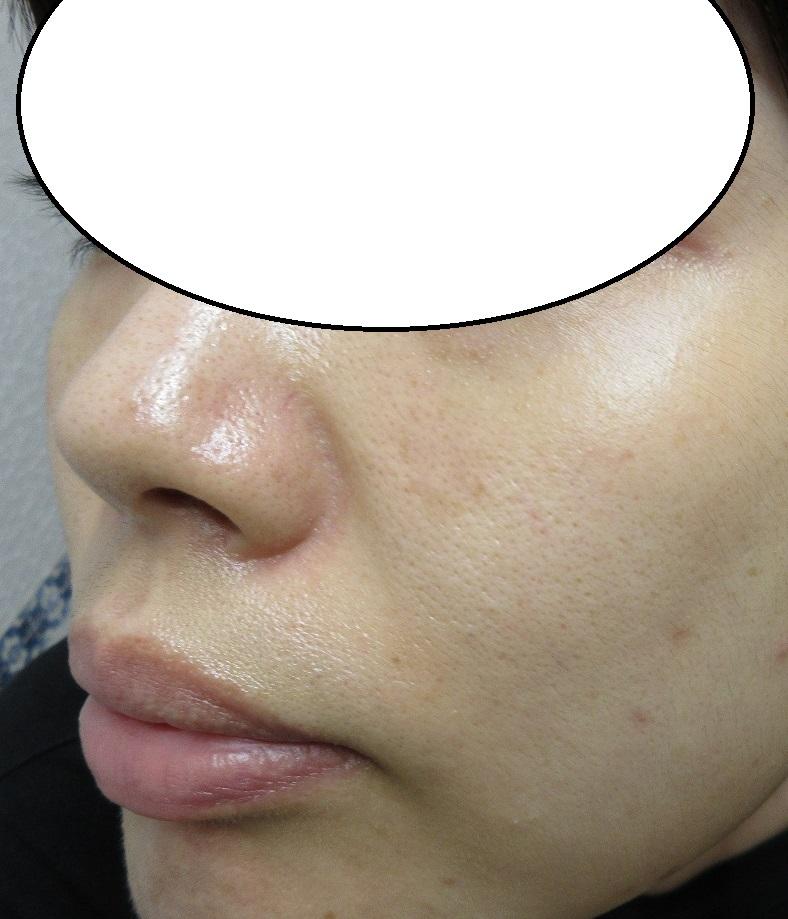 頬の大きなシミの経過。4か月目。だいぶ薄くなってきました。