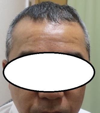薄毛治療6か月目の経過。だいぶ変化が出てきました。