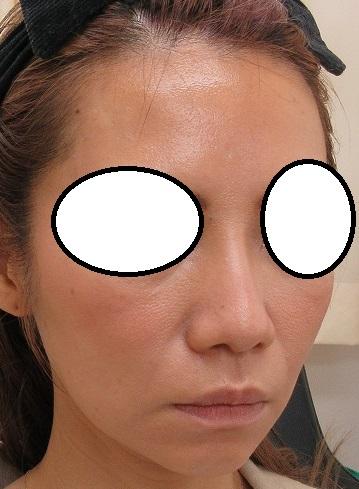 オメガVL1年目の経過。ヒアルロン酸で太くなった鼻筋が細くなってきました