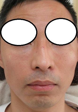 目の下のヒアルロン酸注入療法。直後の変化。