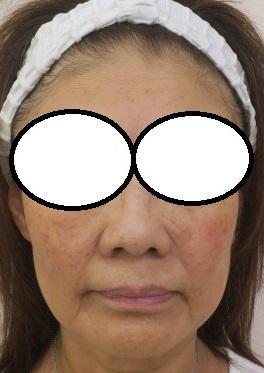 60代前半女性。ウルトラセルQプラス2回目終了後5か月目。フェイスラインがシュッとなってきています。
