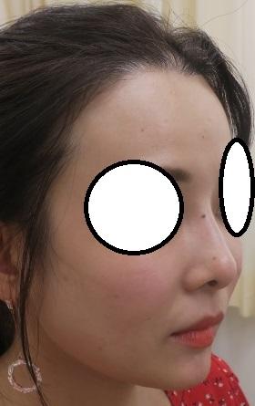 糸による鼻形成の経過。他院でトラブル起こしたプロテーゼ抜去後でもここまできれいになります。