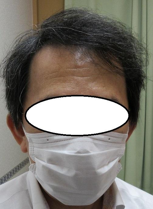 豊洲で薄毛(AGA)治療。ドットヘア内服外用。3年目の経過。