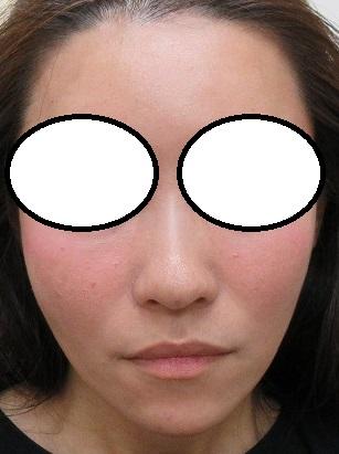 頬のコケをヒアルロン酸で改善。直後の状態。
