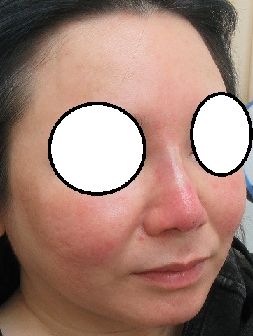Gコグノーズによる切らない鼻尖形成術+鼻中隔延長術。合計8本。直後の状態。