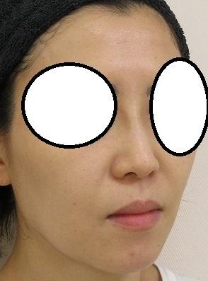 糸による鼻筋形成。定番になったオメガVL4本。1か月目の経過。