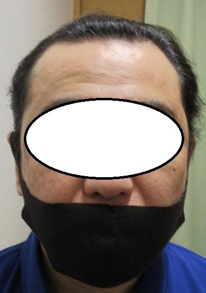 豊洲で薄毛(AGA)治療。4年目。ここまでが限界です。